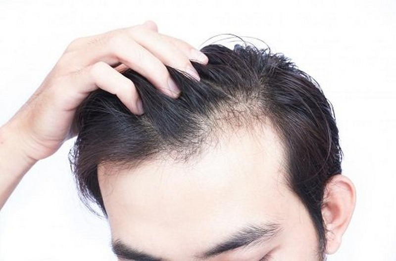 can-a-vitamin-d-deficiency-cause-hair-loss_800x528